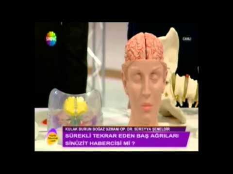 Sinüzit baş ağrısı yapar mı nasıl ayırt edilir Dr. Süreyya Şeneldir