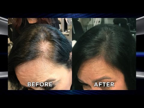 could-microblading-your-scalp-help-with-hair-loss?