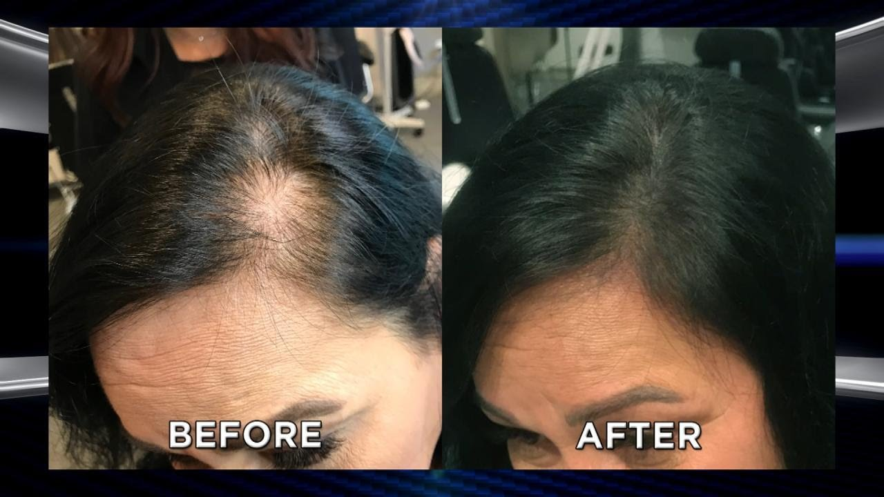 Could Microblading Your Scalp Help With Hair Loss YouTube