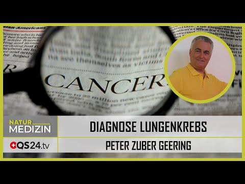 Diagnose Lungenkrebs und eine Lebenserwartung von 3 Monaten | QS24 Gesundheitsfernsehen
