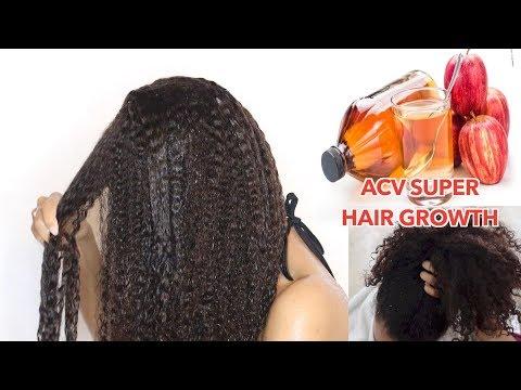 Rapid HAIR GROWTH Apple Cider Vinegar treatment! Natural Hair