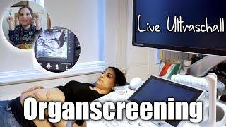 SSW 20 | Live ULTRASCHALL | Organscreening | Bestätigung des GESCHLECHTS | Familienvlog | Filiz