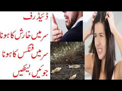 Desi Totka Dandruff Hair Problem Solution In Urdu