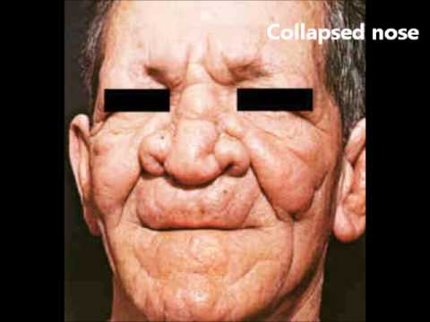 Image result for lepromatous leprosy