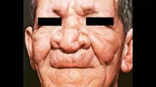 Symptoms of Leprosy