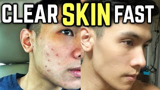 10 Skin Care Tips For Men Philippines | Paano Mawala ang Pimples?