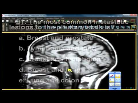 Neuro Imaging Board and Recredentialing Review 16 thumbnail