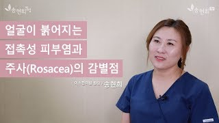 얼굴이 붉어지는 접촉성 피부염과 주사(Rosacea)의 감별점