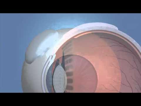 Имплантация дренажа при глаукоме - YouTube