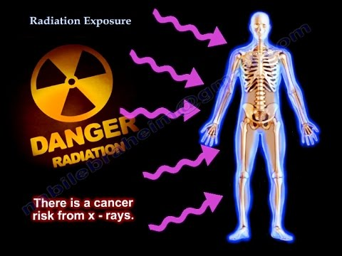 radiation exposure Students will be introduced to the vocabulary used in the radiation exposure activities 15-60 minutes (depending on activity) activity 1: types of radiation.