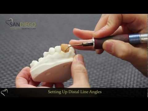 Dental Lab in San Diego