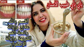 تبييض الأسنان 😁فرمشة عين من أول إستعمال غادي تصدمي من نتيجة 🤩وعمرك متعاودي تشوفي طبيب