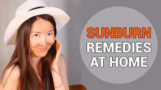 Treating Sunburnt Skin | Sunburn Remedies at Home