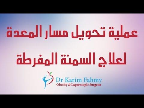 عملية تحويل مسار المعدة لعلاج السمنة المفرطة – دكتور كريم فهمي