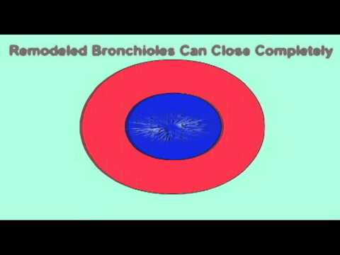 AP2 EXAM 2: BRONCHOCONSTRICTION & BRONCHODILATION.avi