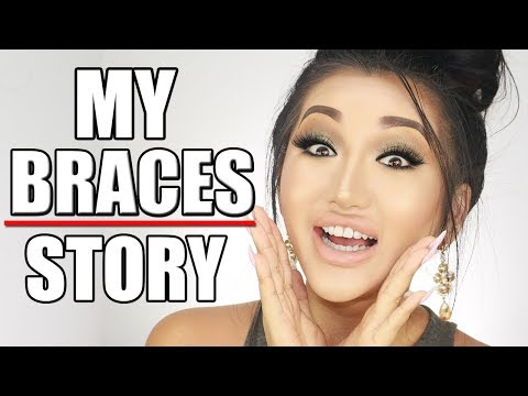 STORYTIME: WHY I DECIDED TO GET BRACES
