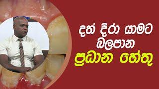 දත් දිරා යාමට බලපාන ප්රධාන හේතු | Piyum Vila | 18 - 03 - 2021 | SiyathaTV Thumbnail