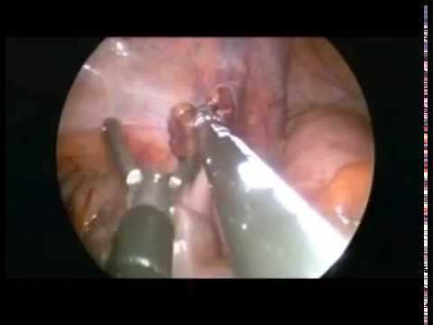 single port laparoscopic varicocelectomy - YouTube