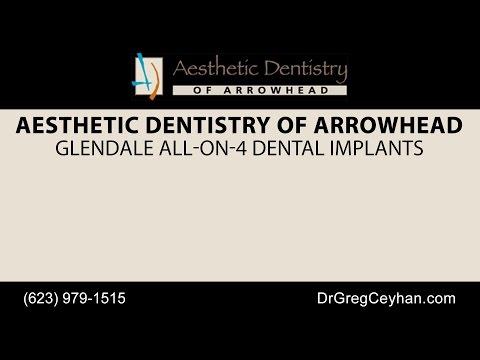 Glendale All-On-4 Dental Implants   Aesthetic Dentistry of Arrowhead
