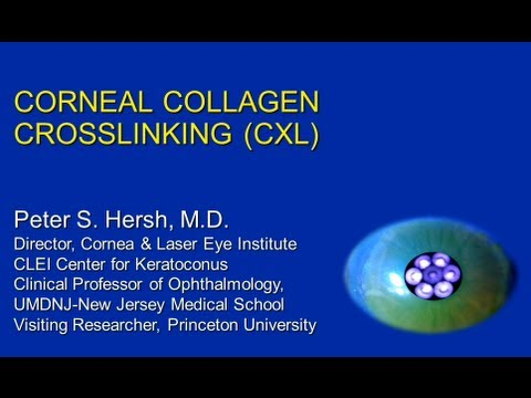 Corneal Collagen Crosslinking Update