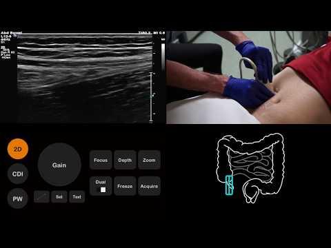 Ultrasound Tutorial: Appendix/Appendicitis   Radiology Nation