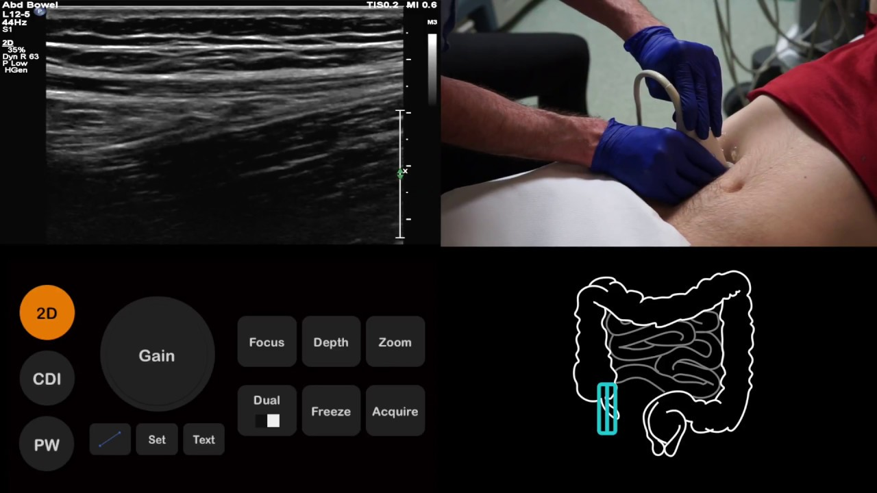 ultrasound tutorial appendix appendicitis radiology nation [ 1280 x 720 Pixel ]