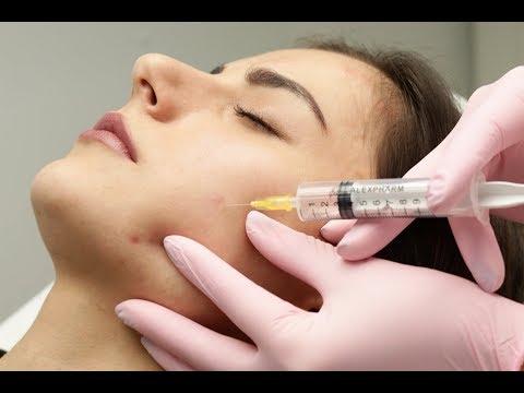 Лечение акне. Озонотерапия, как процедура комплексного лечения