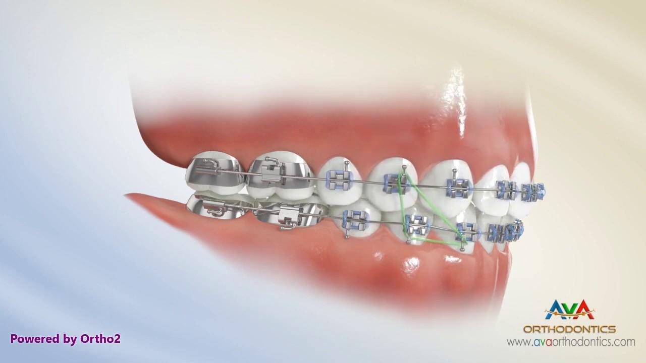 Rubber Bands Ava Orthodontics Invisalign
