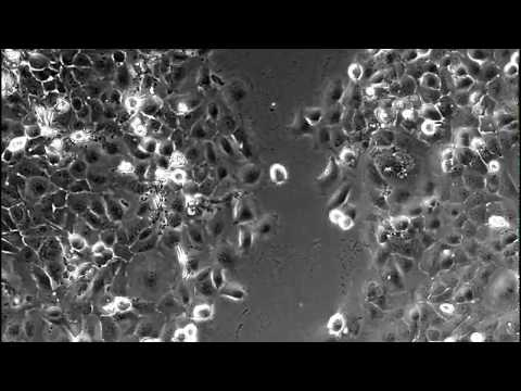 Time lapse video imaging of scratch healing assay