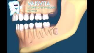 Что делать если болит зуб мудрости. Удаление зуба мудрости в Иркутске(Удаление верхнего или нижнего зуба мудрости в стоматологии Иркутска