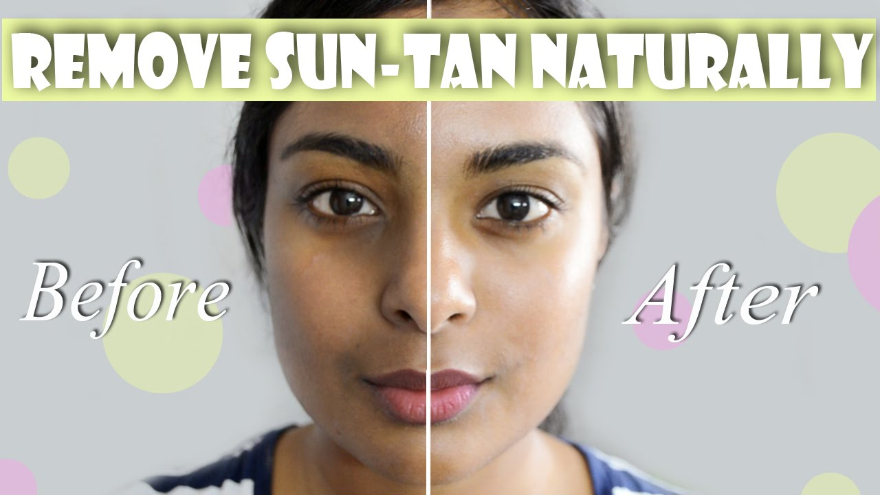 Naturally Even Skin Tone Remedy