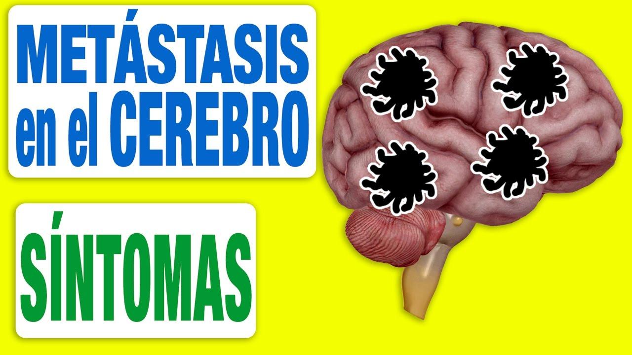 síntomas de dolor de cabeza de cáncer de próstata