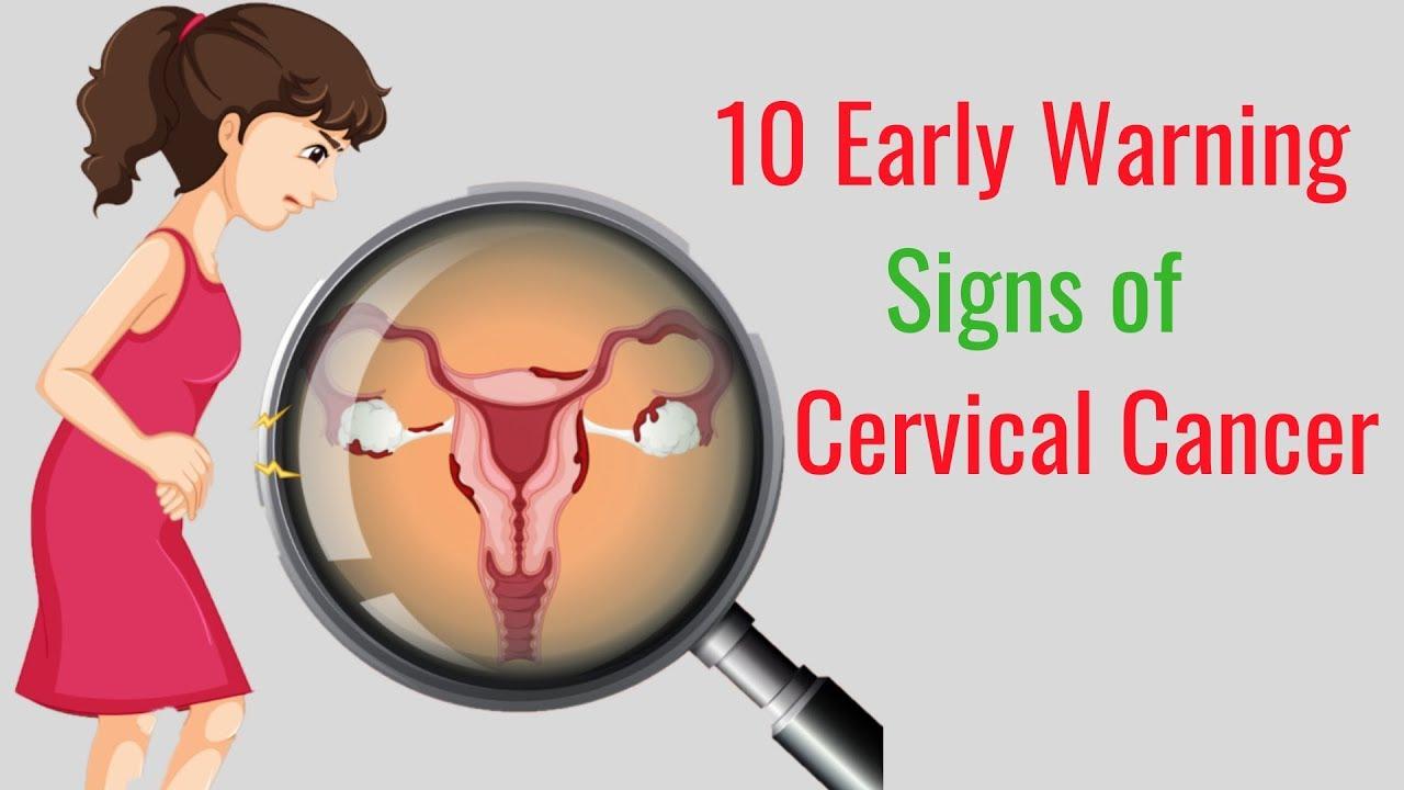 Warning signs of cervical cancer