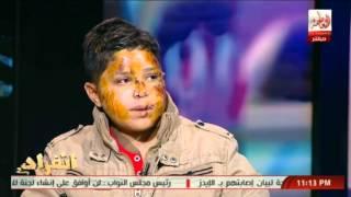 الطفل المختطف لبيع اعضاءه  يكشف كيف تم دفنه فى القبر وكيف خرج من تحت التراب