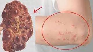 5 Signale, die zeigen, dass deine Nieren in Gefahr sind, die du nicht ignorieren darfst!