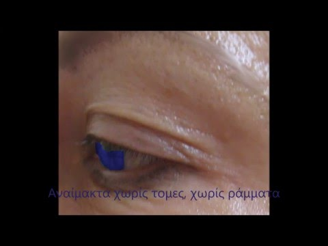 Βλεφαροπλαστική χωρίς χειρουργείο - Θεσσαλονίκη και Αθήνα, Κάτια Χάιτα-Φωτιάδου