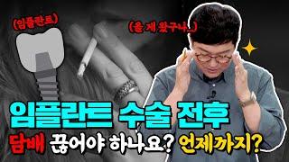 임플란트하면서 담배 펴도 되나요? | 임플란트 수술 예…