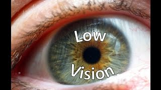 Low Vision - Part 3 of 4: Glaucoma & Cataracts