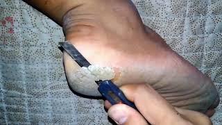 Download Kaki kapalan parah dikupas pakai pisau