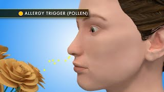For Allergy Week, The Doctors welcome allergist Dr. Neeta Ogden, an...