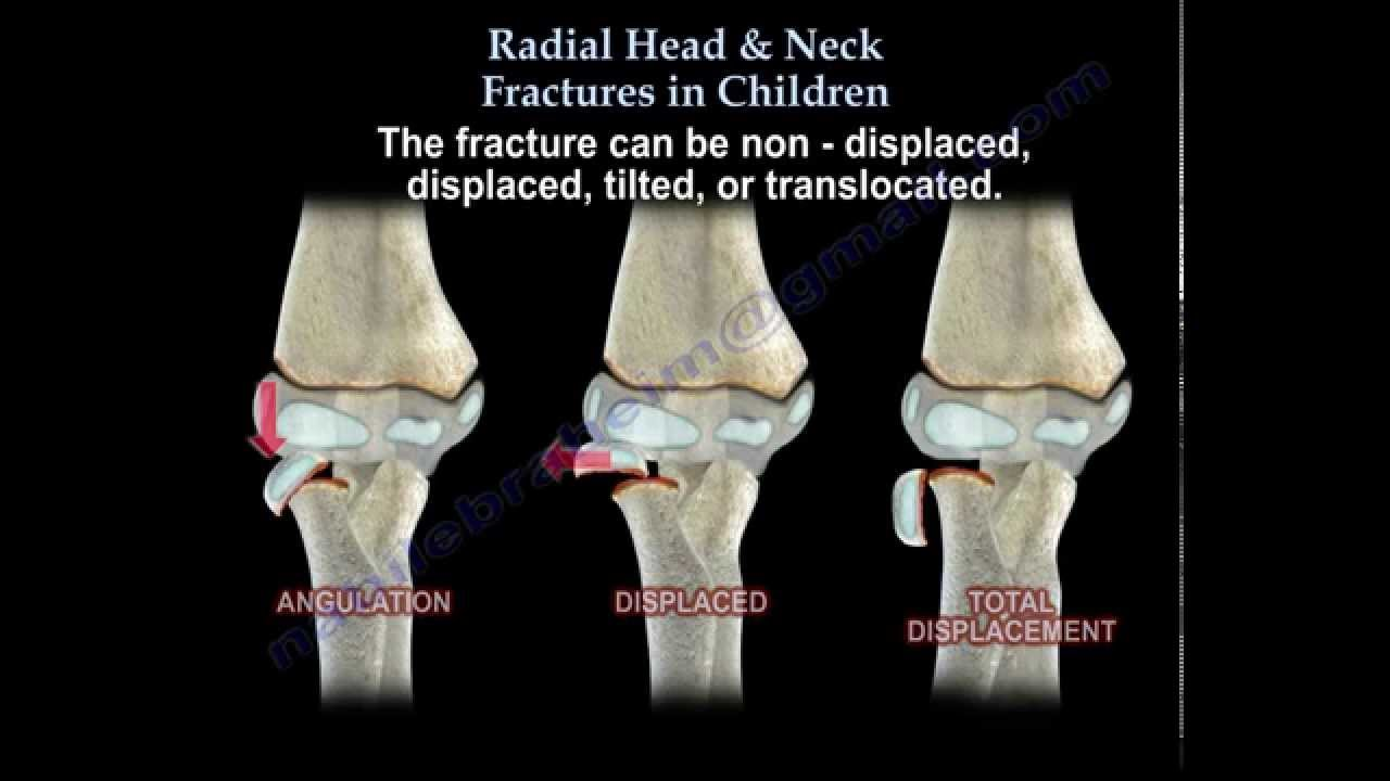 Radial Head & Neck Fractures In Children - Everything You ...