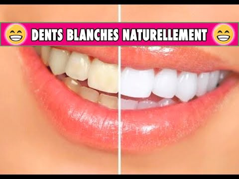 blanchiment des dents chez soi
