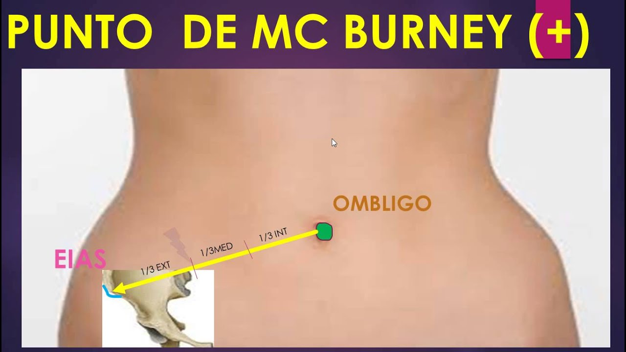 PUNTO DE MC BURNEY - MNEMOTECNIA - CEPUMATIC - YouTube