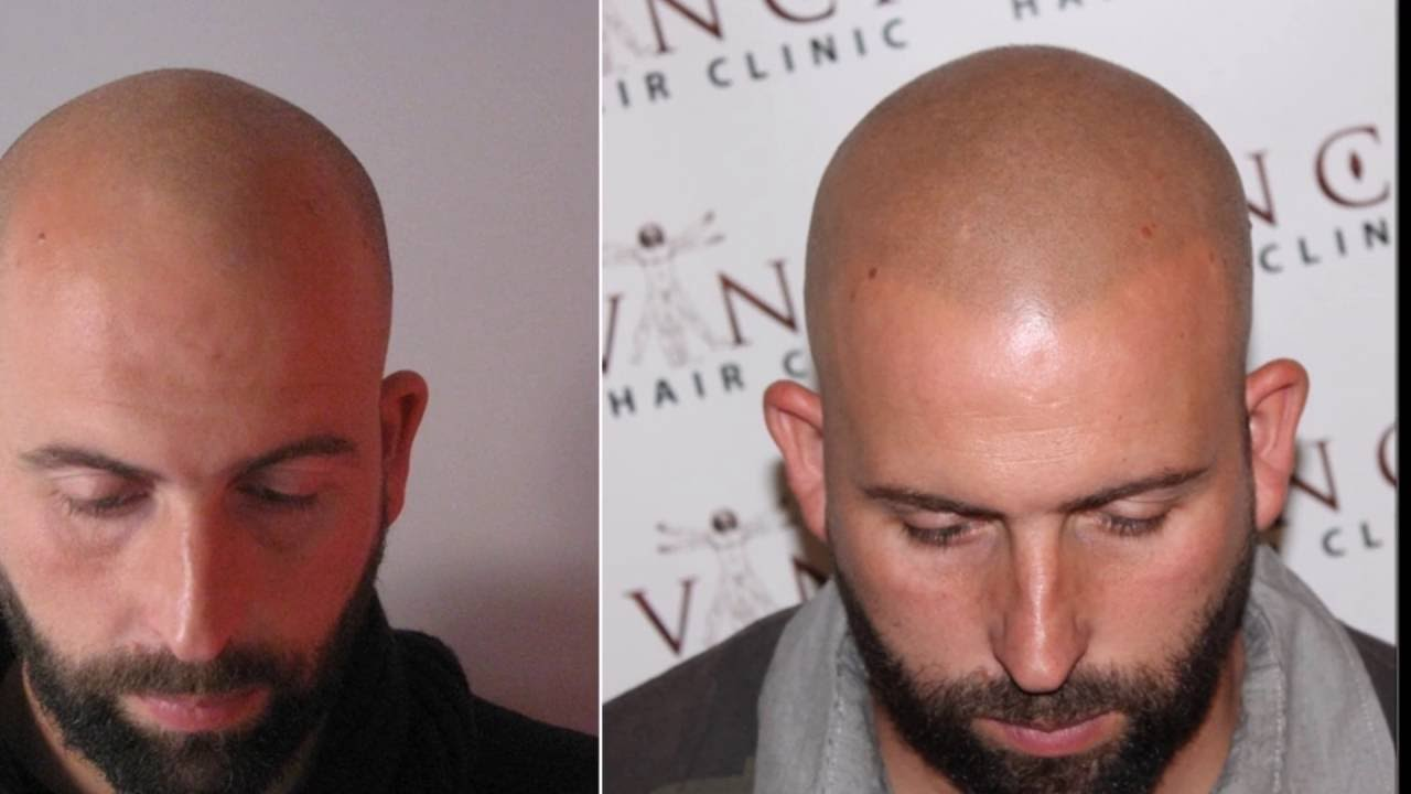Jos 233 180 S Hair Loss Journey To Vinci Hair Clinic And Scalp
