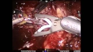 Μερική νεφρεκτομή σε υπέρβαρο ασθενή