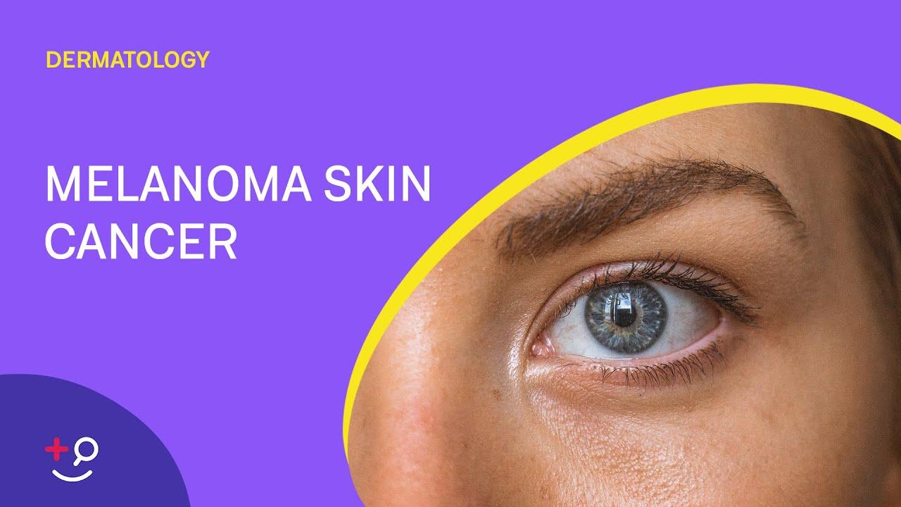 Melanoma Skin Cancer Overview Dermatology Youtube