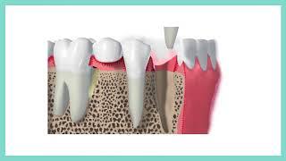 รีวิวถอนฟันเพื่อทำรากฟันเทียม