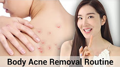 hqdefault - Acne Body Treatment Http