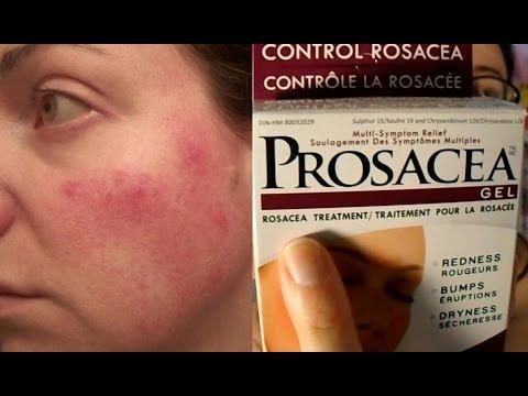 Prosacea Rosacea Treatment Product Review (not Sponsored) | Rosy JulieBC