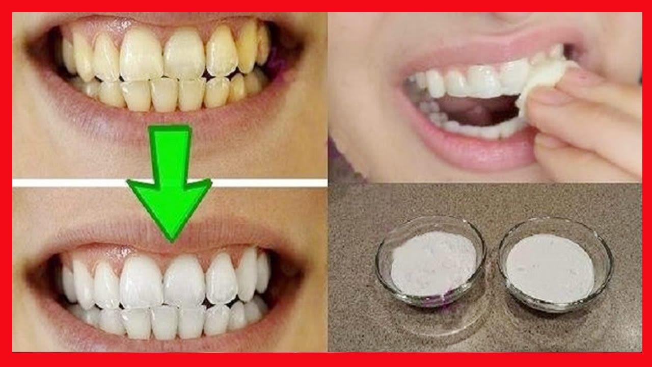 Dentes Brancos Em 2 Minutos A Maneira Mais Facil Para Branquear
